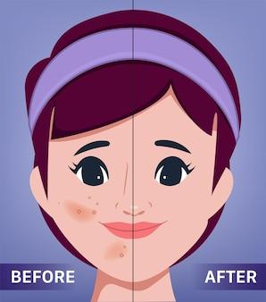 Młoda kobieca twarz trądzik i czysta skóra portret kliniki chirurgii pięknej kobiety