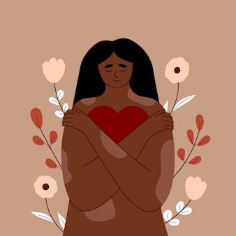 Młoda kobieta z łuszczycą skóry, dziewczyna z bielactwem przytula siebie i swoje ciało. w dłoniach trzyma serce. kochaj siebie, pewność siebie i troskę. zaakceptuj siebie, pozytywne ciało. wektor.