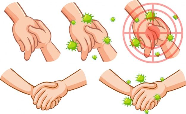 Motyw koronawirusa z ręką pełną zarazków dotykających drugiej dłoni