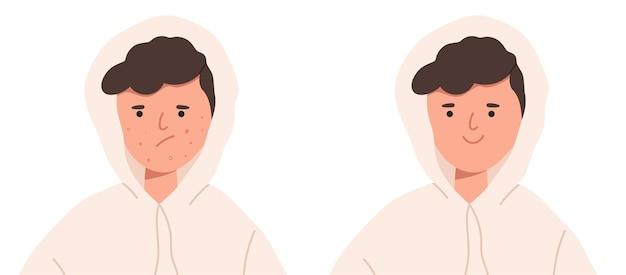 Nastoletni chłopiec z trądzikiem przed i po
