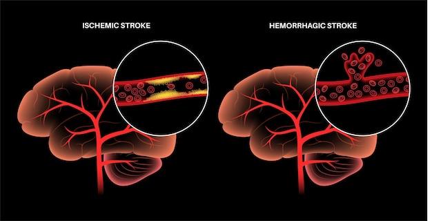 Niedokrwienny i krwotoczny udar mózgu