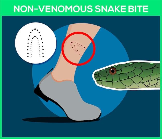 Niejadowite ukąszenie węża w nogę
