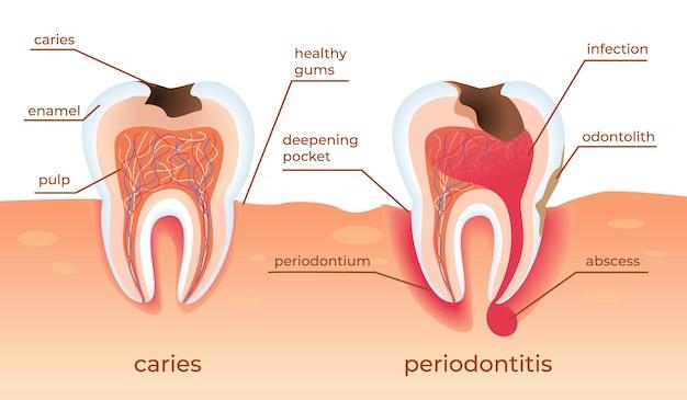 Niezdrowe zęby stoją na surowych dziąsłach. próchnica.