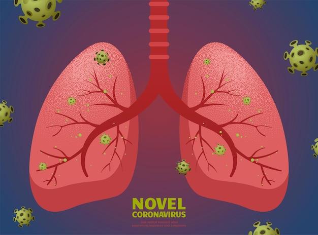 Nowatorski koronawirus i płuca