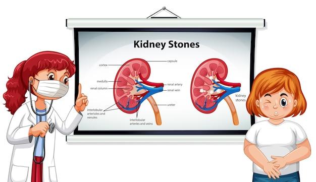 Objawy kamieni nerkowych stylu cartoon infografika z postacią z kreskówki lekarza