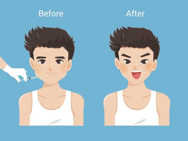 Odmładzająca pielęgnacja skóry dla mężczyzn i kosmetyki męskie. różne rodzaje zmarszczek na twarzy, zmarszczki mimiczne. zmiany skórne związane z wiekiem.