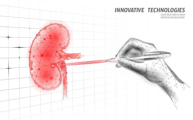 Operacja laserowa ludzkiej nerki low poly
