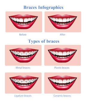 Otwarte usta z czerwonymi błyszczącymi ustami przedstawiającymi metalowe plastikowe ceramiczne zęby szelki typów realistyczne infografikę