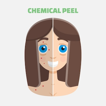 Peeling chemiczny