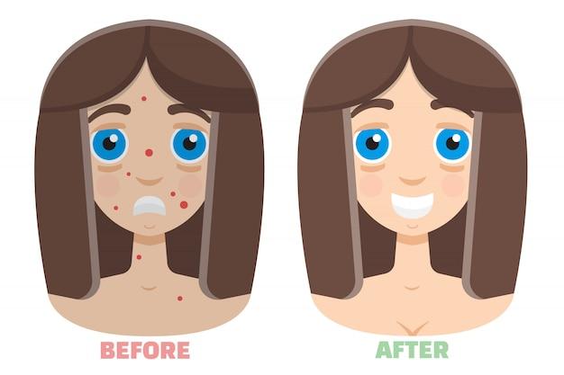 Peeling laserowy przed i po zabiegu