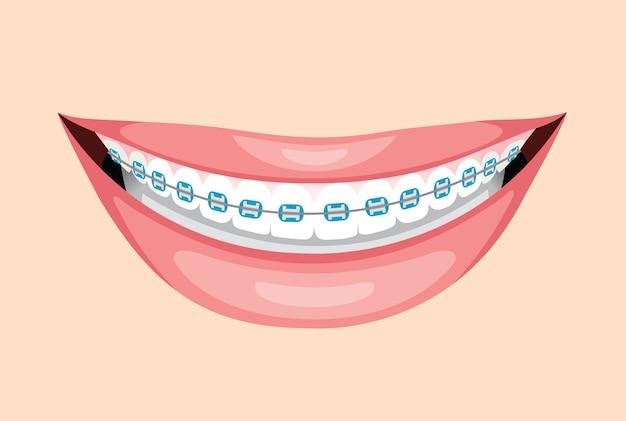 Piękny uśmiech z szelkami na zęby