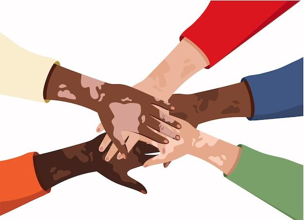 Pigmentacja społeczności bielactwa na dłoniach różne piękno ciała pozytywne choroby skóry na bielactwo