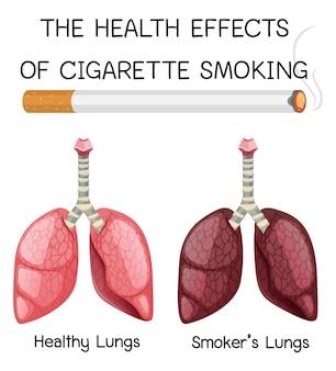 Plakat na temat zdrowotnych skutków palenia papierosów