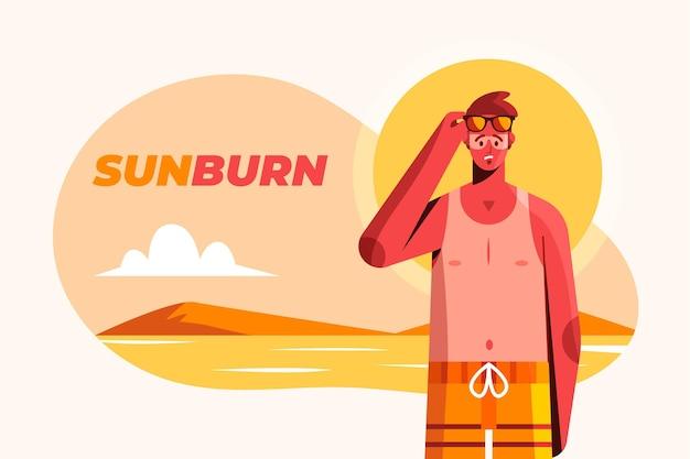 Płaska osoba z oparzeniem słonecznym na plaży