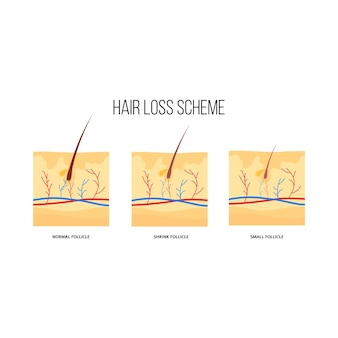 Płaski schemat utraty włosów. graficzny schemat mieszków włosowych