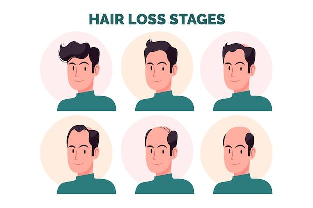 Płaskie ręcznie rysowane etapy wypadania włosów ilustracja z człowiekiem