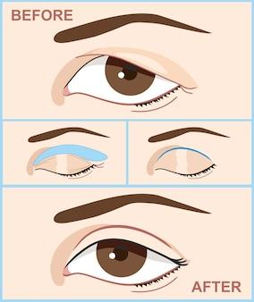 Plastyka powiek przed i po, infografiki z ikonami zabiegów chirurgii plastycznej