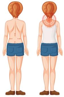 Plecy ludzkiej kobiety z plamami bólu