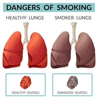 Płuca zdrowej osoby i palacza.