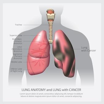 Płuca ze szczegółami i rakiem płuc