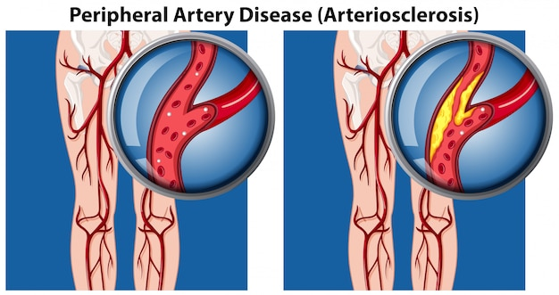 Porównanie choroby tętnic obwodowych