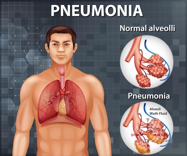 Porównanie zdrowych pęcherzyków płucnych i zapalenia płuc