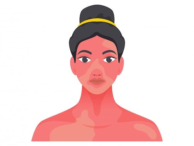 Postać młodej dziewczyny z problemem skóry na białym tle.