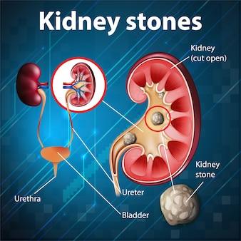 Pouczająca ilustracja kamieni nerkowych