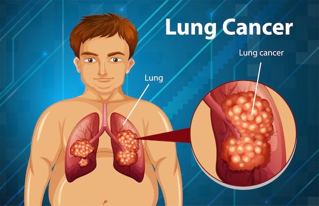 Pouczająca ilustracja raka płuc
