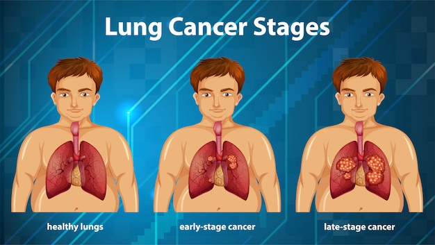 Pouczająca ilustracja stadiów raka płuc