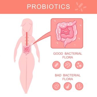 Probiotyki infografiki z sylwetka kobiety i jelit z flory bakteryjnej dobrej i złej kreskówki wektorowej.