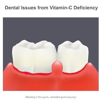 Problemy stomatologiczne z niedoboru witaminy c. ilustracja o niezbędnej witaminie c dla zdrowia zębów w ochronie przed szkorbutem.