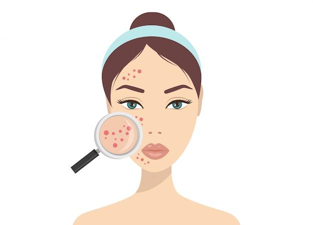 Problemy ze skórą trądzikową. kobieta trzyma szkło powiększające do szukania torbielowaty trądzik na twarzy. wektorowa ilustracja o skóry problemu pojęciu