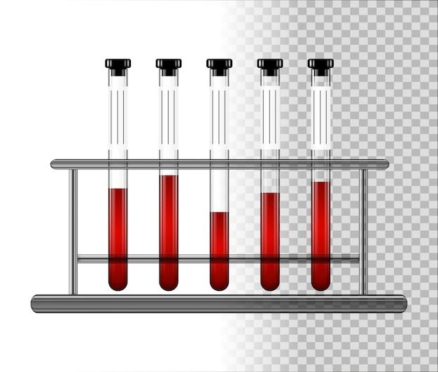 Probówki medyczne z krwią w stojaku. przezroczyste szklane kolby z zakrętką.