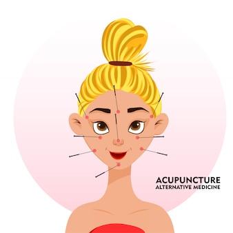 Procedura akupunktury na twarzy dziewczyny.