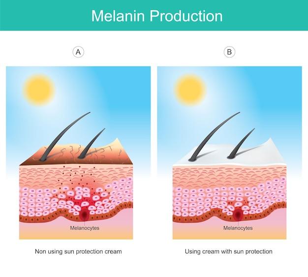 Produkcja melaniny. ilustracja przedstawiająca kolor skóry człowieka oddziałujący na promienie uv, przyczynę pobudzenia komórek melanocytów w warstwach skóry.