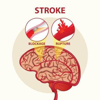 Projekt ilustracji mózgu w dniu udaru mózgu