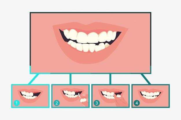 Proteza dentystyczna częściowa