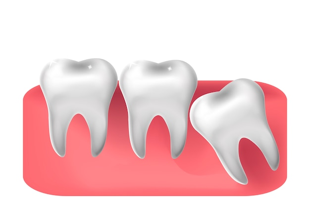 Przecięty ząb mądrości, realistyczny styl. stomatologia, koncepcja ekstrakcji zębów mądrości. ilustracja