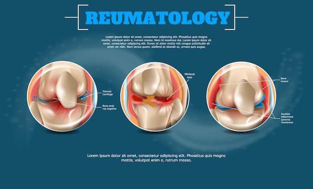 Realistyczna ilustracja reumatologia z szablonem tekstu