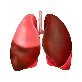 Realistyczna kompozycja światowego dnia zapalenia płuc z odosobnioną ilustracją uszkodzonych płuc