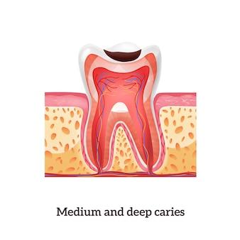 Realistyczna struktura zęba ze średnią i głęboką próchnicą