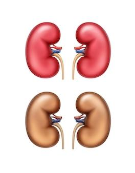 Realistyczne czerwone zdrowe i brązowe chore ludzkie nerki