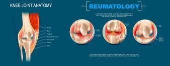 Realistyczne transparent ilustracja Anatomia stawu kolanowego