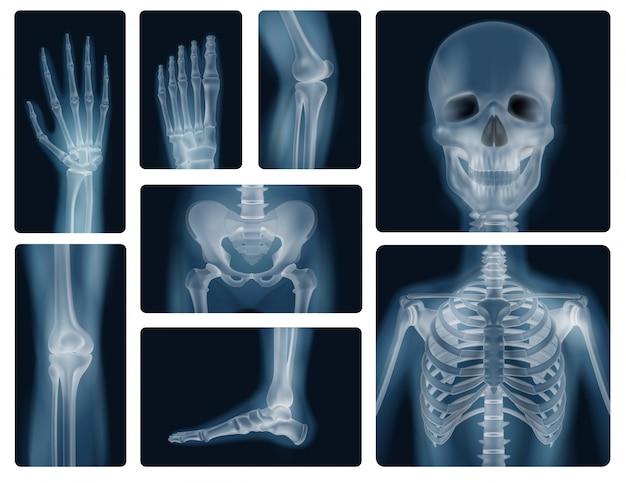 Realistyczne zdjęcia rentgenowskie ludzkich kości