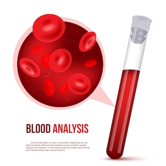Realistyczny projekt plakatu reklamowego analizy krwi z wypełnioną probówką krwią i komórką w czerwonym ludzkim płynie przy wielokrotnym powiększaniu.