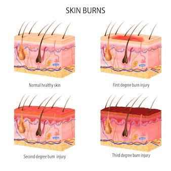 Realistyczny zestaw izolowanych struktur skóry normalnej i trzech stopni oparzeń