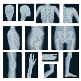 Realistyczny zestaw zdjęć rentgenowskich
