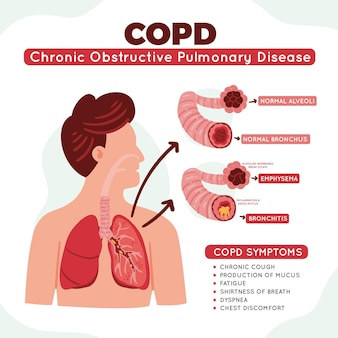 Ręcznie rysowane infografikę przewlekłej obturacyjnej choroby płuc