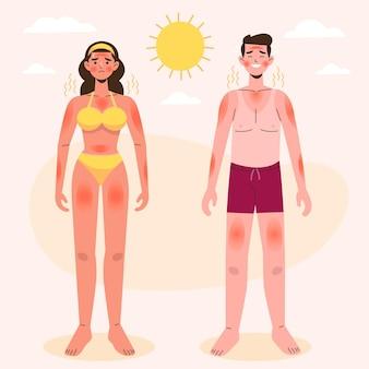 Ręcznie rysowane osoba z zestawem oparzeń słonecznych